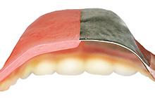 金属床総入れ歯