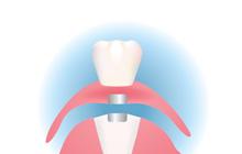 磁石の入れ歯