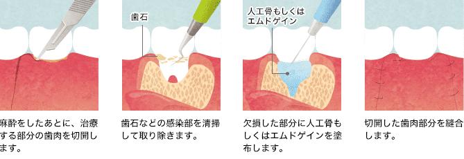 歯周外科手術の手順図