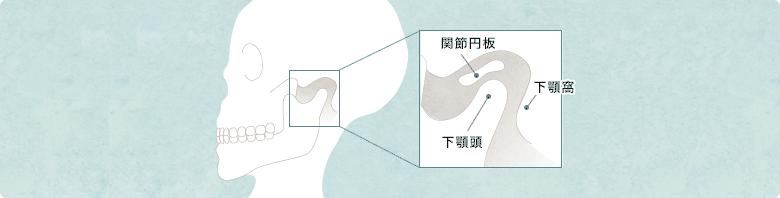 顎関節症のイメー