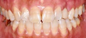 抜歯即時埋入インプラント 治療後写真