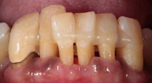 歯周病 固定
