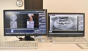 最新式のレントゲン設備(CT完備)