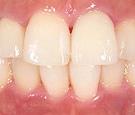 審美歯科症例