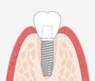 抜歯即時埋入インプラント