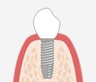 オペ当日に歯が入るインプラント治療《即時荷重インプラント》