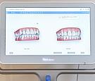 歯の動き方を矯正治療前にCGで確認できます