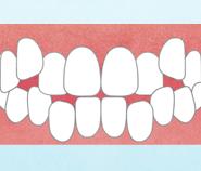 あなたの歯並びはどのタイプ?