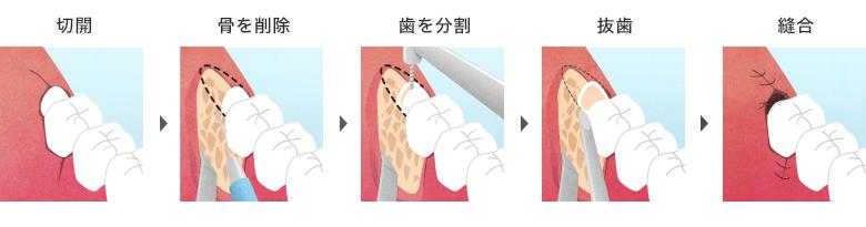 抜歯の流れ