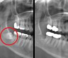 親知らず抜歯症例