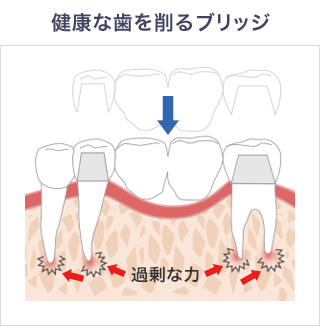 健康な歯を削るブリッジ