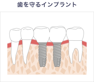 入れ歯のバネによる虫歯