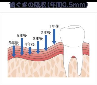 歯ぐきの吸収(年間0.5mm)