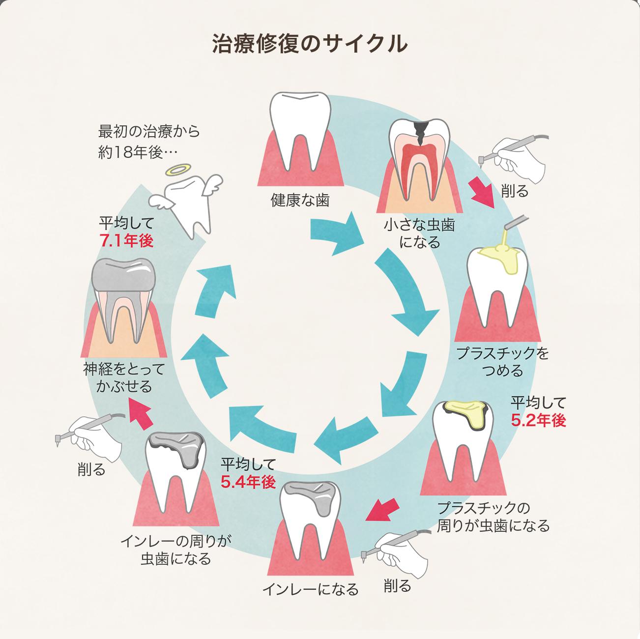 治療修復のサイクル図