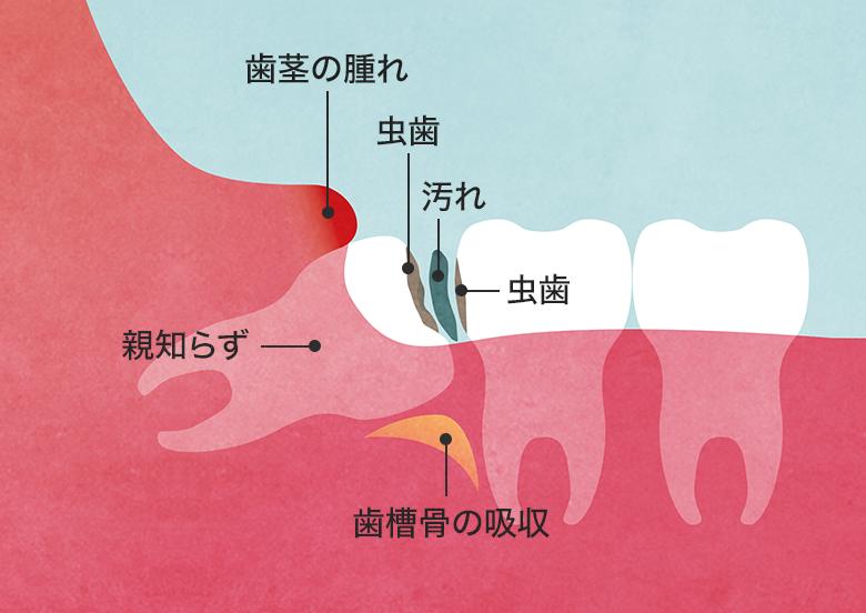 親知らず むし歯、口臭、炎症・歯周病、隣の歯への影響図