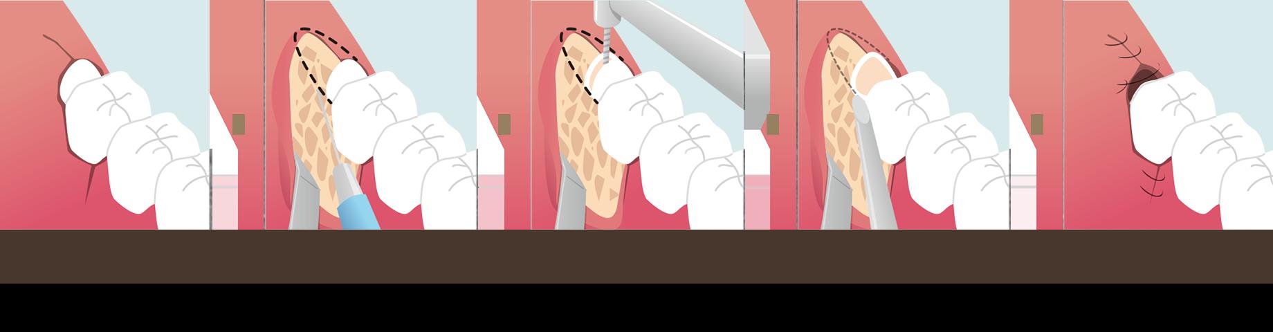 知らずの抜歯の流れ